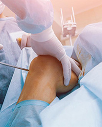Orthopedic-Instruments